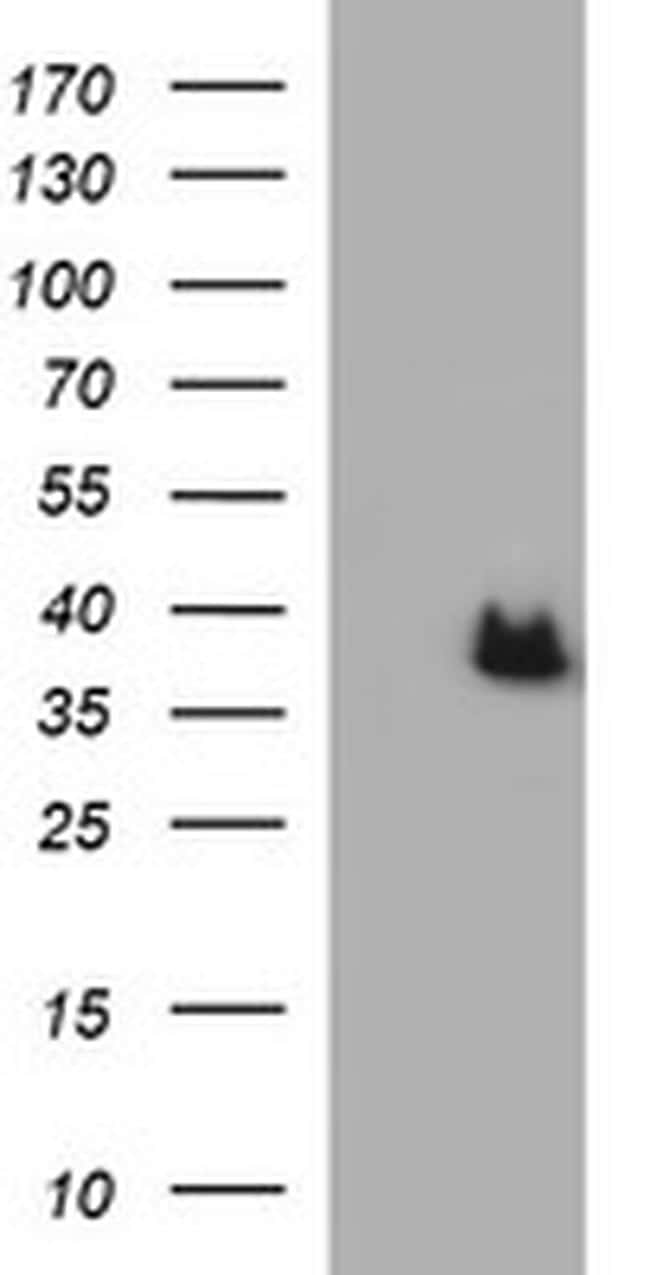 ARG2 Antibody in Western Blot (WB)