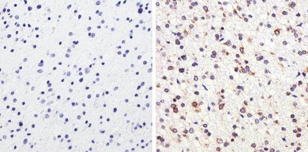 Tau Antibody in Immunohistochemistry (Paraffin) (IHC (P))