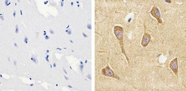 Tau (Cleaved Asp421, Asp422) Antibody in Immunohistochemistry (Paraffin) (IHC (P))
