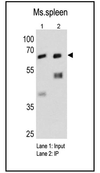Fyn Antibody in Immunoprecipitation (IP)