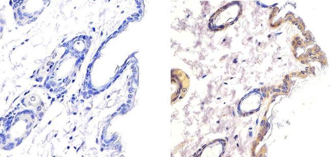 LKB1 Antibody in Immunohistochemistry (Paraffin) (IHC (P))