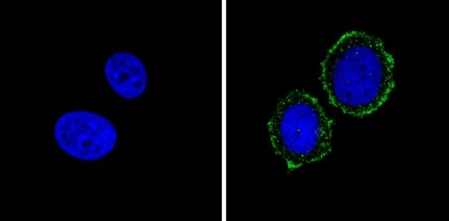 INSR alpha Antibody in Immunofluorescence (IF)