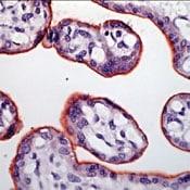 INSR alpha Antibody in Immunohistochemistry (Paraffin) (IHC (P))