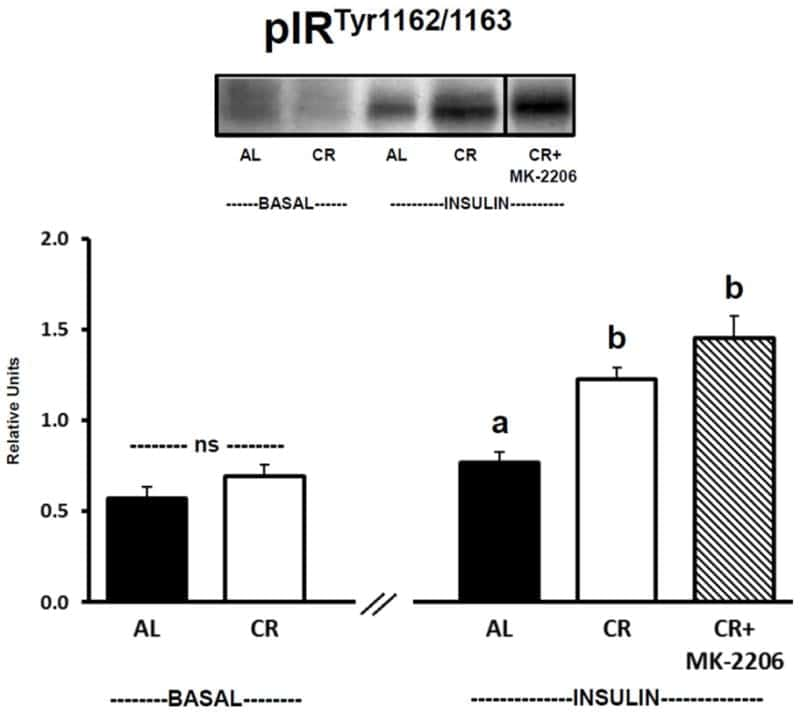 INSR beta Antibody