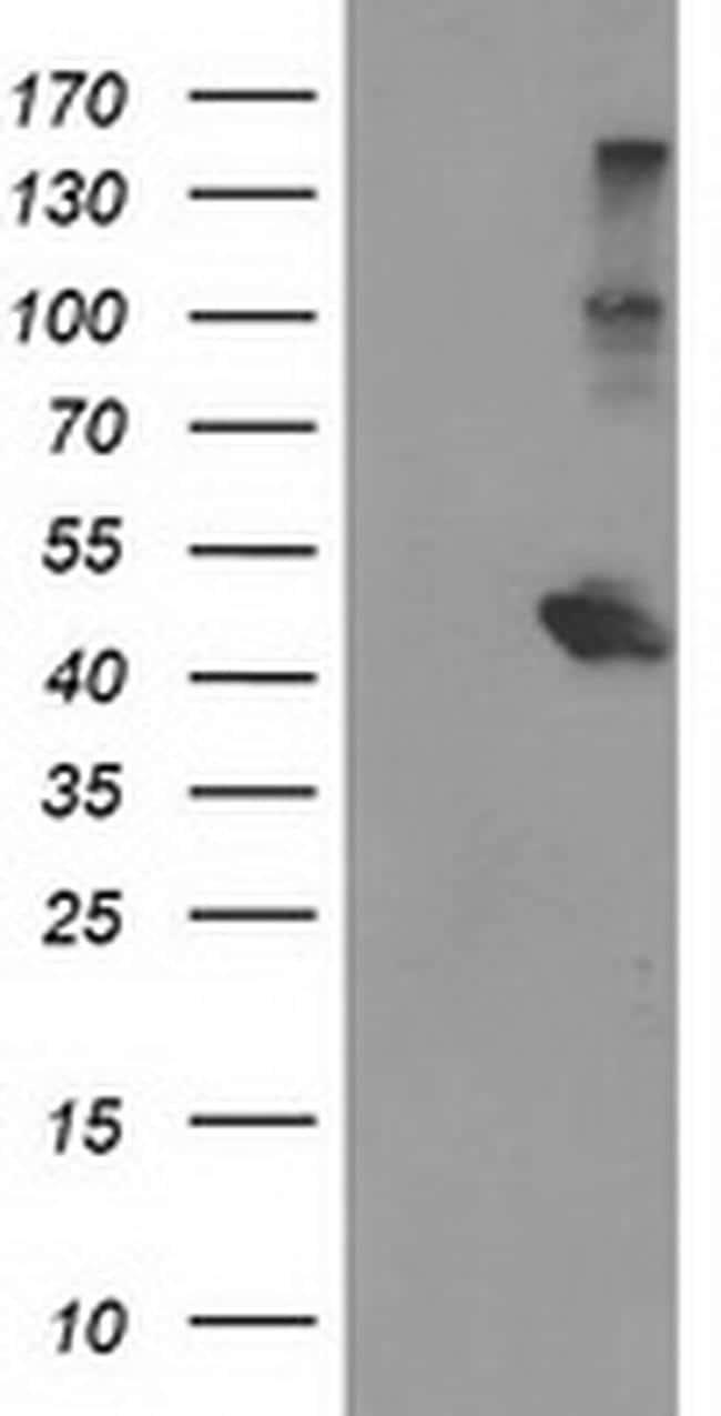 AIPL1 Antibody in Western Blot (WB)