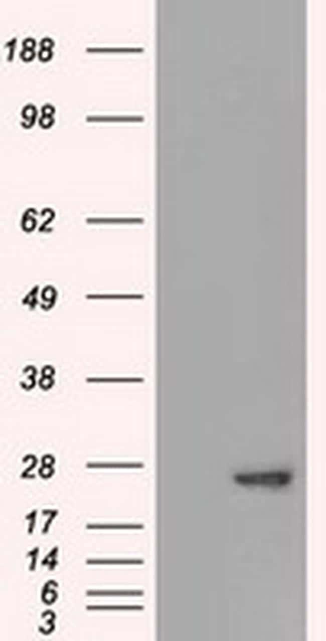 AK1 Antibody in Western Blot (WB)