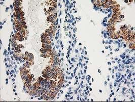 AK4 Antibody in Immunohistochemistry (Paraffin) (IHC (P))