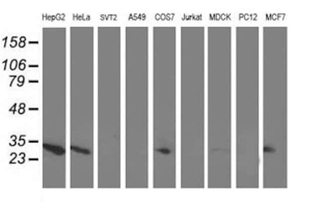 AK4 Antibody in Western Blot (WB)