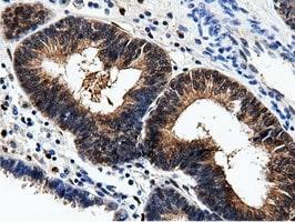 AK5 Antibody in Immunohistochemistry (Paraffin) (IHC (P))