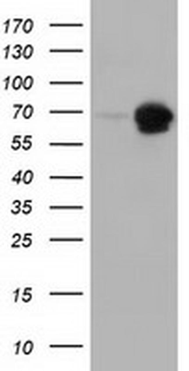 AK5 Antibody in Western Blot (WB)