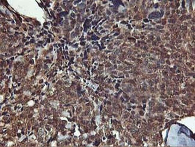 AKT1 Antibody in Immunohistochemistry (Paraffin) (IHC (P))