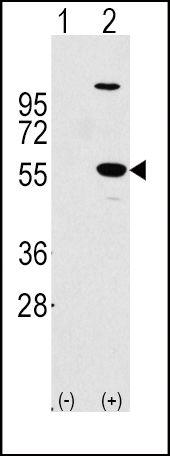 ALDH1A1 Antibody in Western Blot (WB)