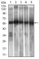 ALDH2 Antibody in Western Blot (WB)