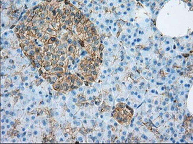 ALDH3A1 Antibody in Immunohistochemistry (Paraffin) (IHC (P))
