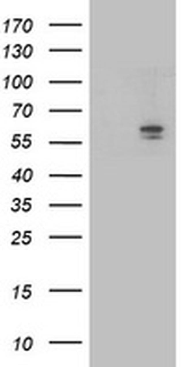 ALDH3A2 Antibody in Western Blot (WB)