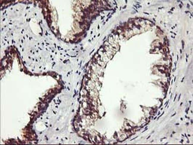 ALG2 Antibody in Immunohistochemistry (Paraffin) (IHC (P))