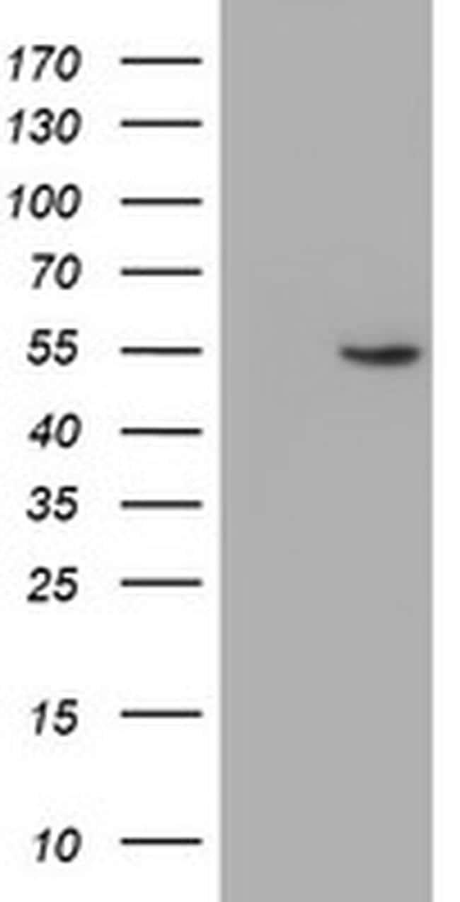 ALG2 Antibody in Western Blot (WB)