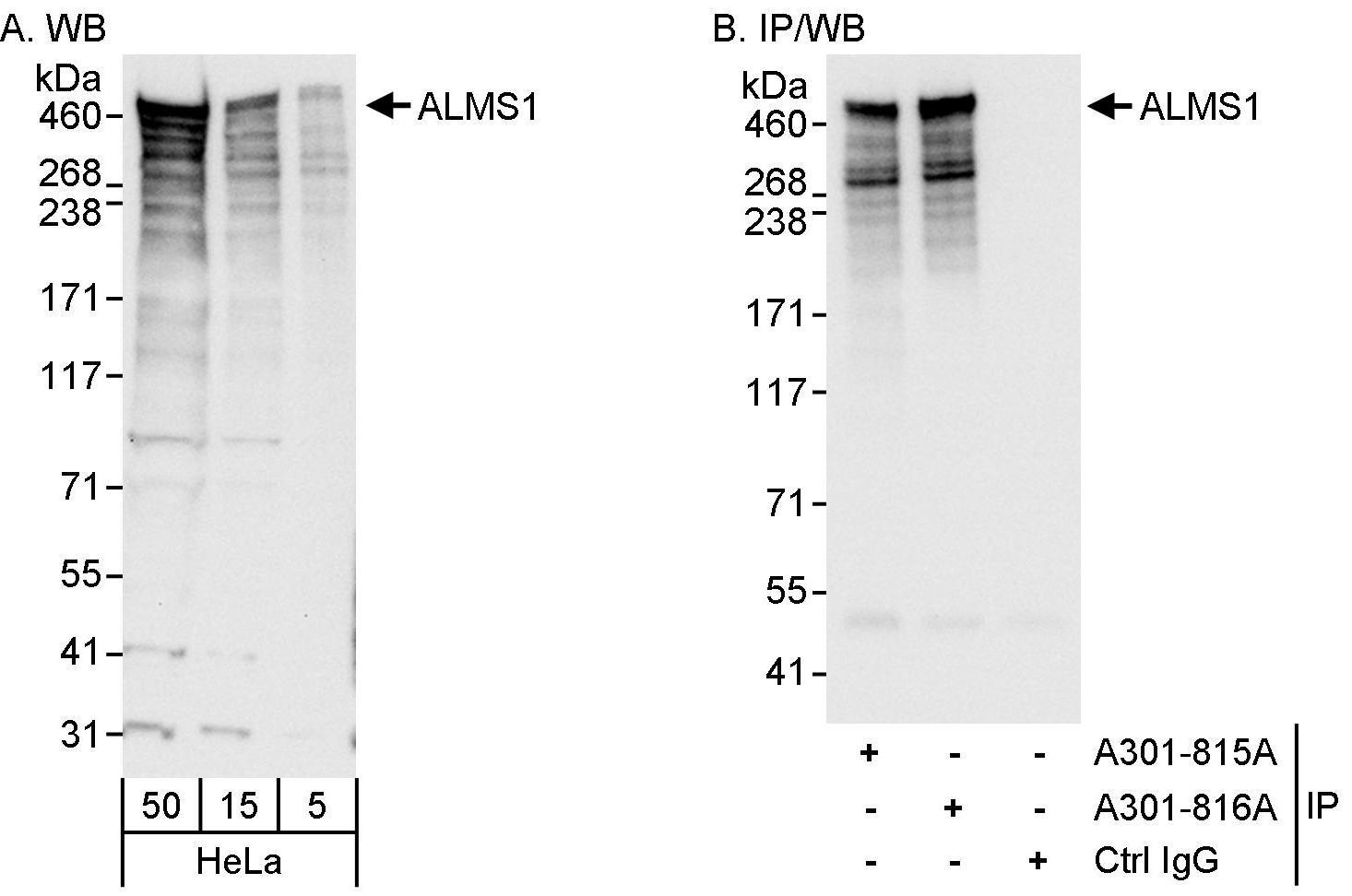 ALMS1 Antibody in Western Blot (WB)