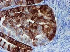 ALOX15 Antibody in Immunohistochemistry (Paraffin) (IHC (P))