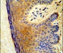 ALOX15B Antibody in Immunohistochemistry (IHC)