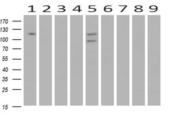 ANAPC2 Antibody in Western Blot (WB)