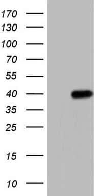 ANGPT1 Antibody in Western Blot (WB)
