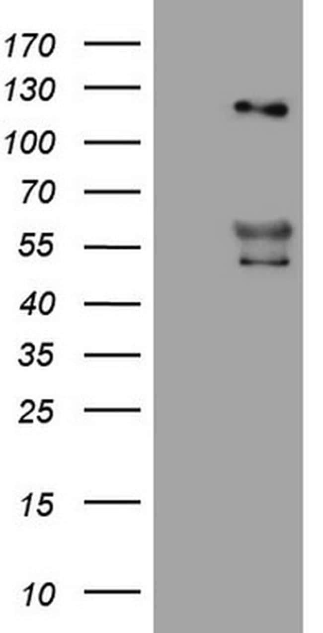 ANGPT2 Antibody in Western Blot (WB)