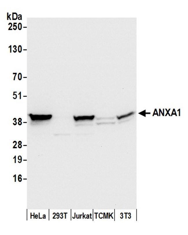 ANXA1/Annexin A1 Antibody in Western Blot (WB)