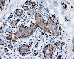 ANXA1 Antibody in Immunohistochemistry (Paraffin) (IHC (P))