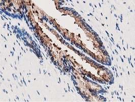 ANXA3 Antibody in Immunohistochemistry (Paraffin) (IHC (P))