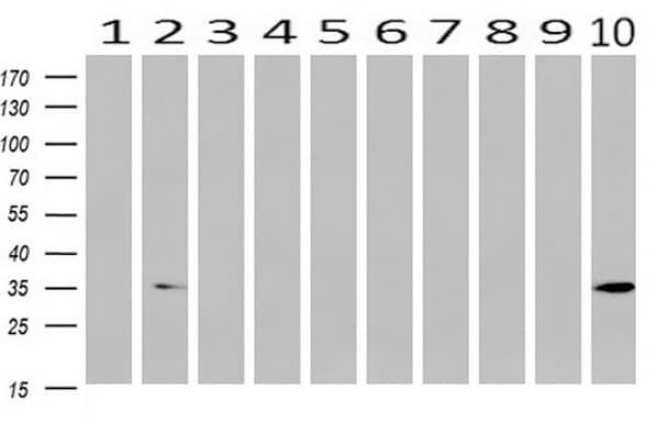 ANXA3 Antibody in Western Blot (WB)