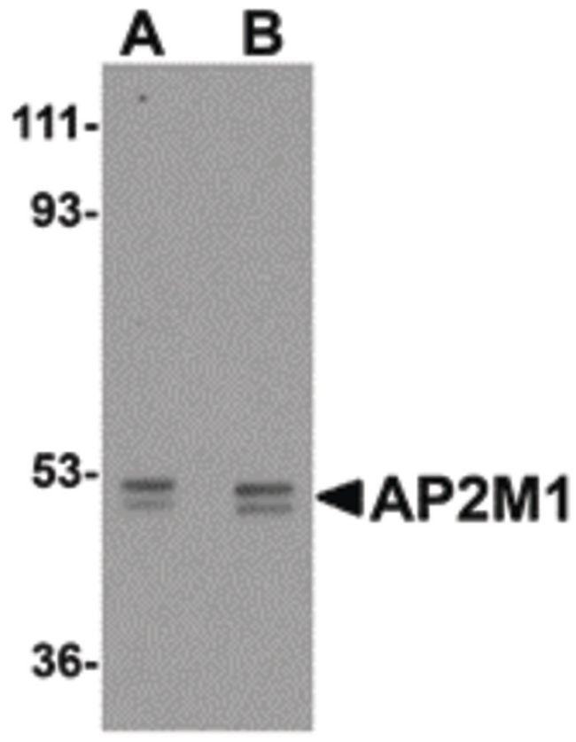 AP2M1 Antibody in Western Blot (WB)