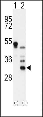 Apolipoprotein D Antibody in Western Blot (WB)
