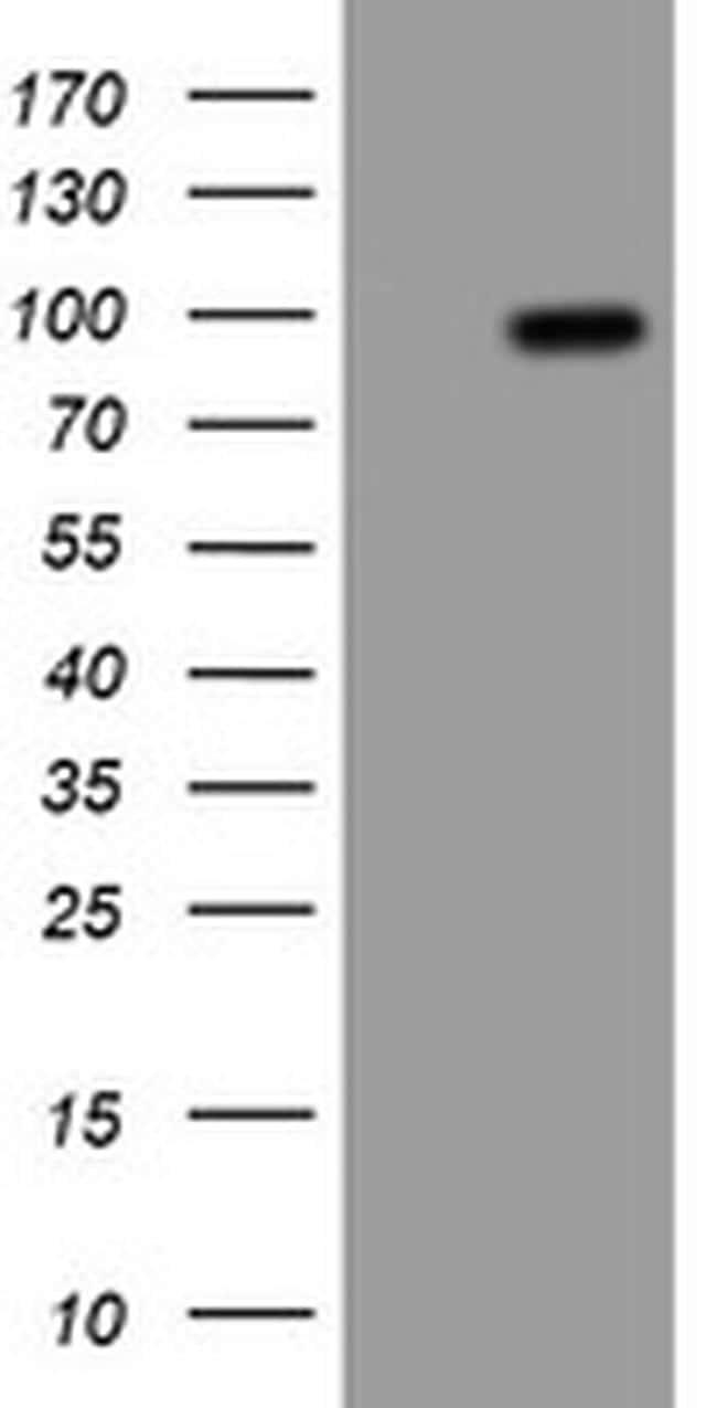 APP Antibody in Western Blot (WB)