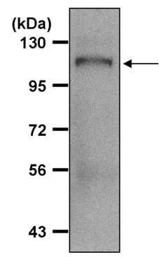 Amyloid Precursor Protein Antibody in Immunoprecipitation (IP)