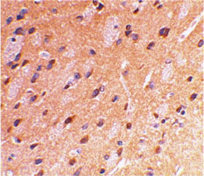 beta Amyloid Antibody in Immunohistochemistry (IHC)