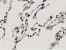ARHGAP25 Antibody in Immunohistochemistry (Paraffin) (IHC (P))