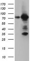 ARHGAP25 Antibody in Western Blot (WB)