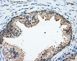 ARHGDIA Antibody in Immunohistochemistry (Paraffin) (IHC (P))
