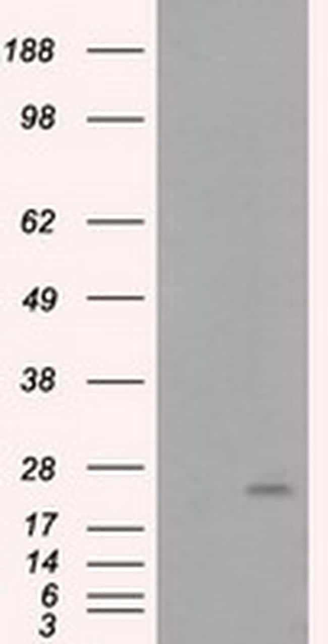 ARHGDIA Antibody in Western Blot (WB)