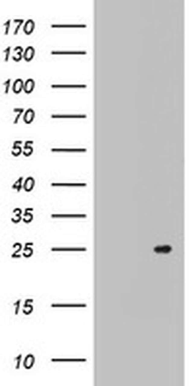 ARL3 Antibody in Western Blot (WB)