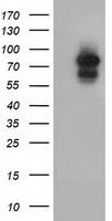 ARNT Antibody in Western Blot (WB)