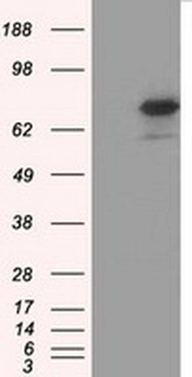 ARNTL Antibody in Western Blot (WB)