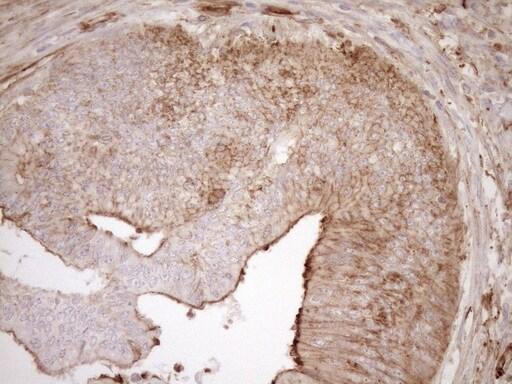 ASPDH Antibody in Immunohistochemistry (Paraffin) (IHC (P))