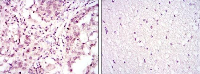 ATF2 Antibody in Immunohistochemistry (IHC)