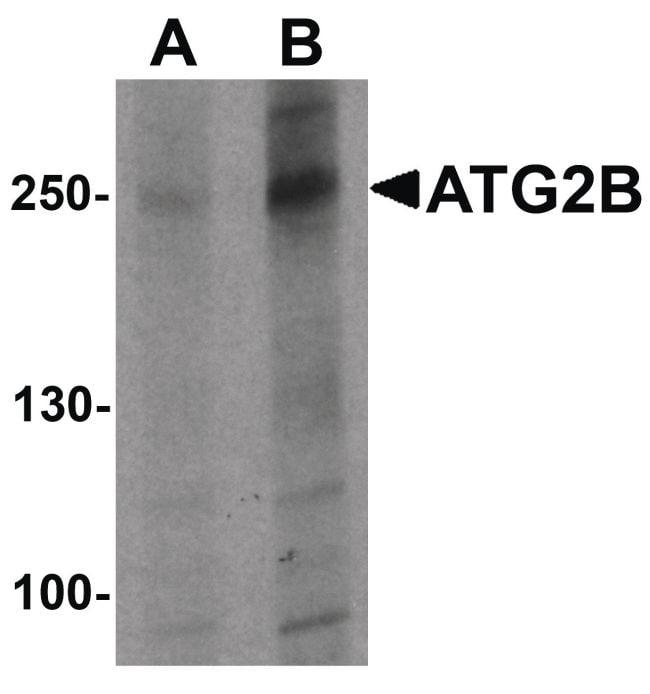 ATG2B Antibody in Western Blot (WB)