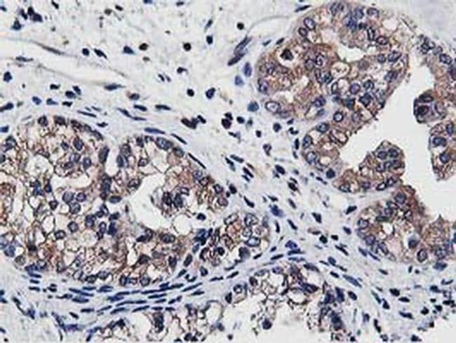 ATG3 Antibody in Immunohistochemistry (Paraffin) (IHC (P))