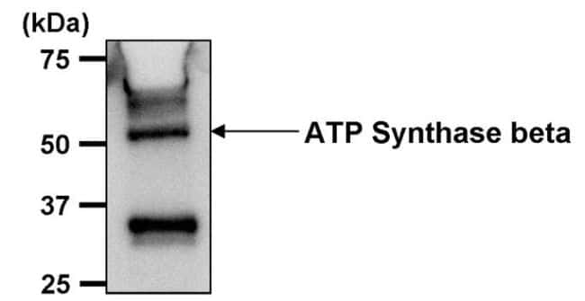 ATP Synthase beta Antibody in Immunoprecipitation (IP)