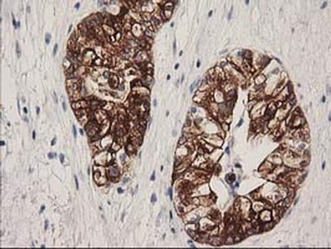 ATP6V1B1 Antibody in Immunohistochemistry (Paraffin) (IHC (P))