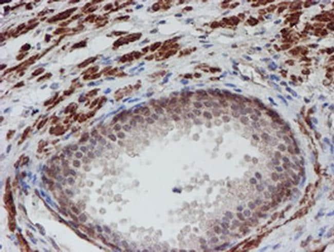 ATRIP Antibody in Immunohistochemistry (Paraffin) (IHC (P))